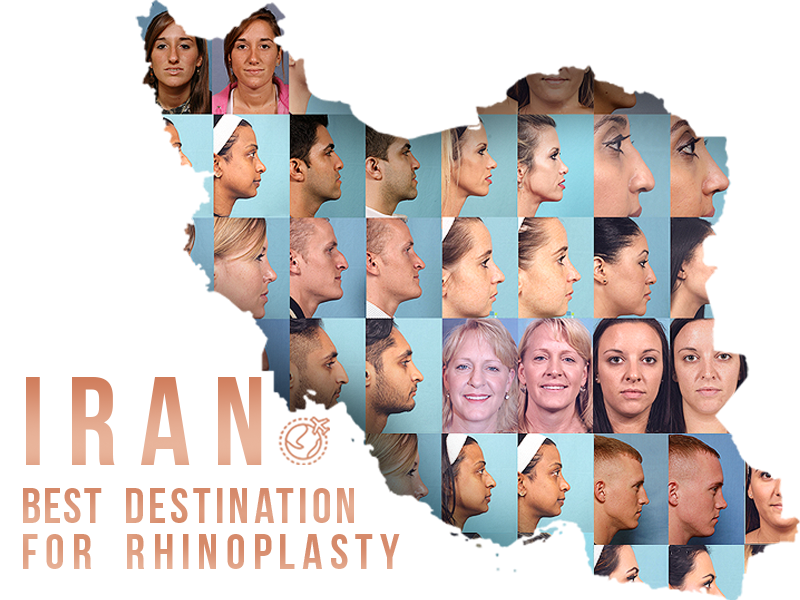 Why Iran is one of the top destinations for rhinoplasty?